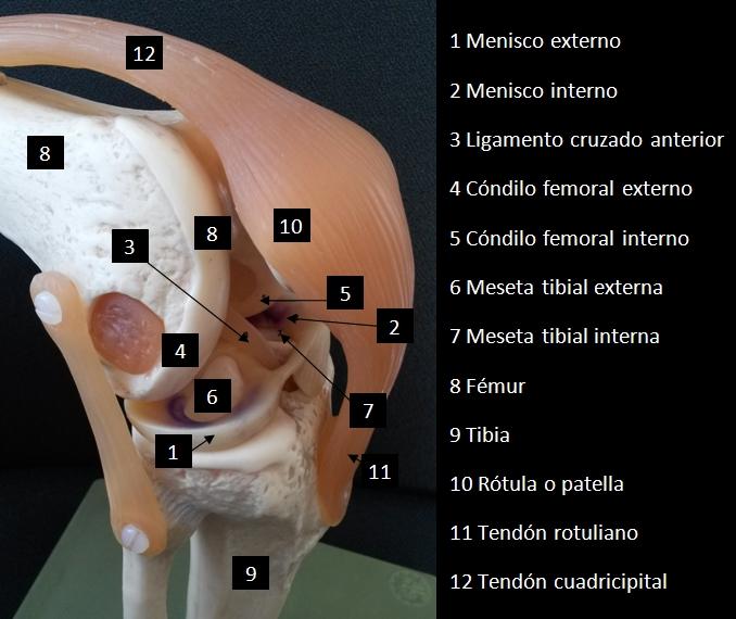 Cirugía artroscópica de rodilla: meniscectomía parcial (rotura ...