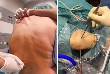 Izquierda: Realización de anestesia raquídea, mediante punción en la espalda. Derecha: Introducción del instrumental de artroscopia en la rodilla.