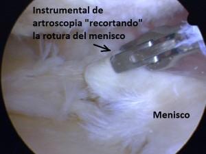 07_1-meniscectomia-basquet