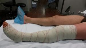 Pierna vendada tras la cirugía
